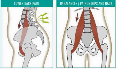 Causa principal del dolor lumbar y cómo puedes evitarlo