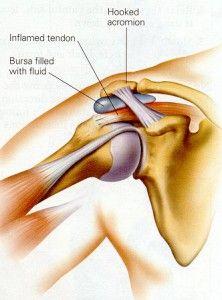 causas dolor hombro