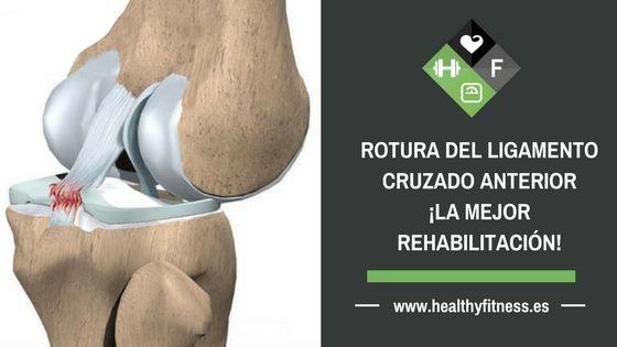 Rotura ligamento cruzado anterior – ¡La mejor rehabilitación!