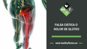 falsa ciatica